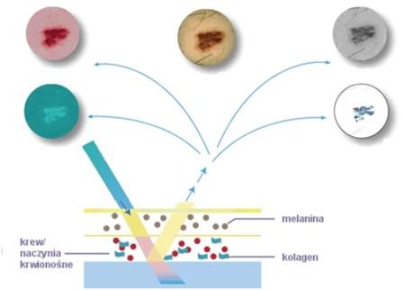 warstwy SIAscope rak